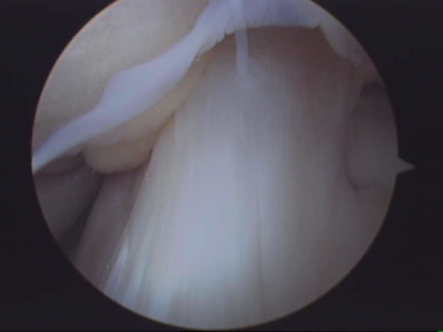 Normal ACL